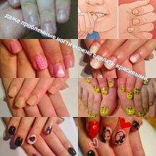 Наращивание ногтей на проблемных ногтях объявление услуга